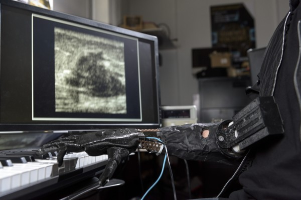 The prosthetic arm uses ultrasound sensors to see the muscle movements.