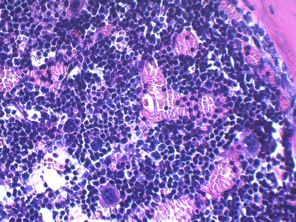 This microscopic photo shows bone marrow cellularity and composition in a non-obese control mouse. The image is part of a study published in the Journal of Experimental Medicine that highlights the pernicious effects of obesity on the long-term health of blood-making stem cells (hematopoietic stem cells).