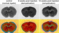 Newswise: An Innovative PET Tracer Can Measure Damage From Multiple Sclerosis in Mouse Models