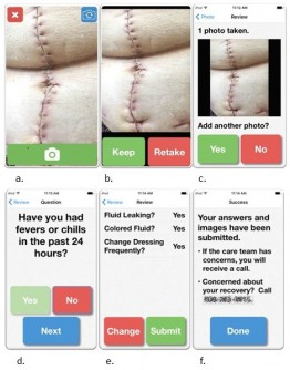 Newswise: Postoperative Wound Monitoring App Can Reduce Readmissions and Improve Patient Care