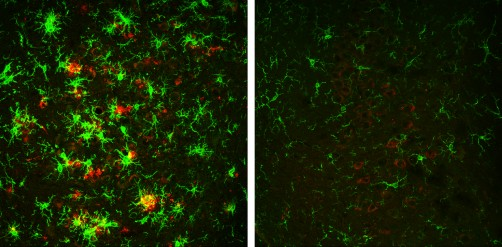 Newswise: Researchers Successfully Reverse Alzheimer's Disease in Mouse Model