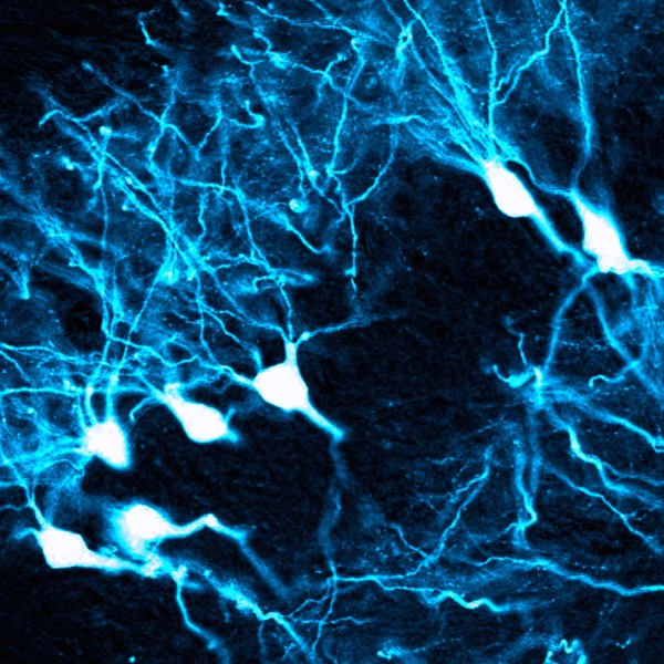 This image shows AAV therapy affecting pyramidal neurons in the hippocampus.