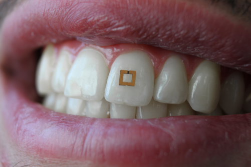 Newswise: Scientists Develop Tiny Tooth-Mounted Sensors That Can Track What You Eat
