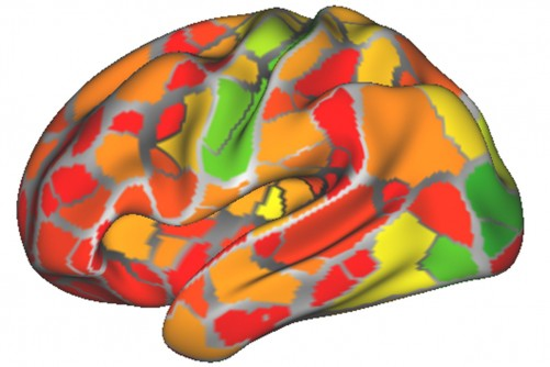 Newswise: Brain Scans May Help Diagnose Neurological, Psychiatric Disorders