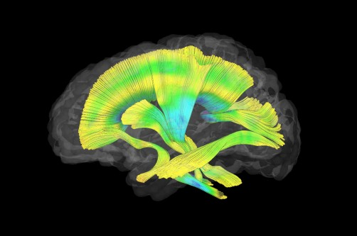 Newswise: Fragile X Imaging Study Reveals Differences in Infant Brains