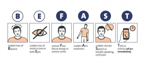 Newswise: How to Spot the Signs of Stroke, with Five Tips on Prevention to Kick Off Stroke Awareness Month
