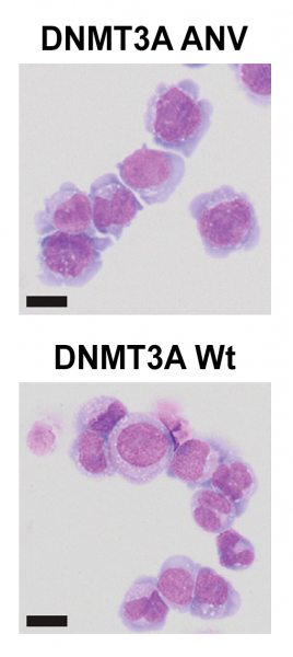 Human leukemia cells treated with targeted <i>DERARE</i> methylation (DNMT3A Wt, right) show more maturation than control-treated cells (DNMT3A ANV, left). Wright-Giemsa staining; scale bar = 10 microns.