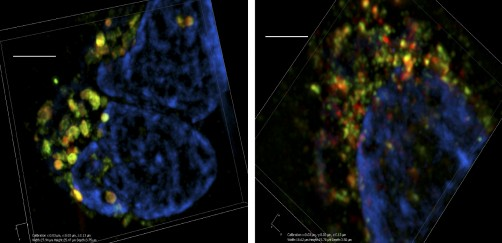 Newswise: Researchers Uncover New Target to Stop Cancer Growth