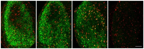 Newswise: Researchers Identify Brain Cells Responsible for Removing Damaged Neurons After Injury