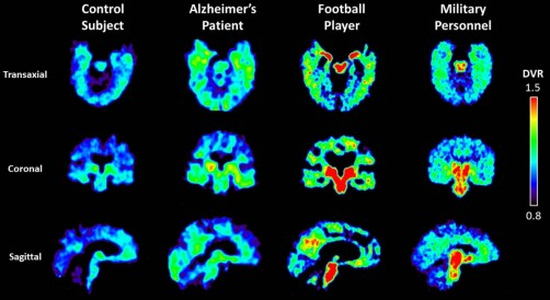 Newswise: Military Personnel Show Brain Changes Similar to Those Seen in Retired Football Players with Suspected Chronic Traumatic Encephalopathy