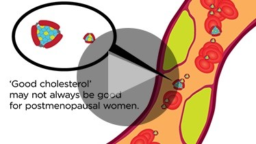 Newswise: 'Good Cholesterol' May Not Always be Good for Postmenopausal Women