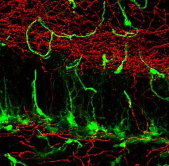 Newswise: Can Scientists Leverage Mysterious Mossy Cells for Brain Disease Treatments?