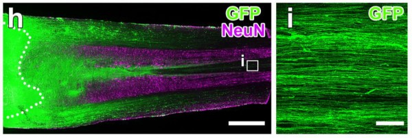 (h) Spinal cord neural stem cells (green) grafted into rat spinal injury at dotted line extend into injured area and differentiate into mature neurons (purple). (i) Close-up (box) shows axons of transplanted neural stem cells (green fibers) extending beyond area of transplantation into injury site.