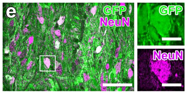 Neural stem cells (green) differentiate into mature neurons (purple) following transplantation into rat spinal cord injury model. Right: close up of single cell showing expression of neural stem cell marker (green) and marker indicating differentiation into mature neuron (purple).