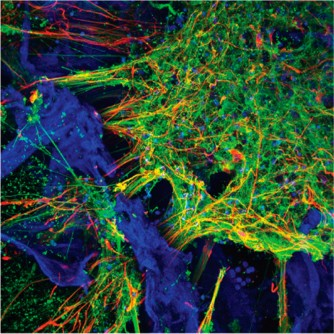 Newswise: Scientists grow functioning human neural networks in 3D from stem cells